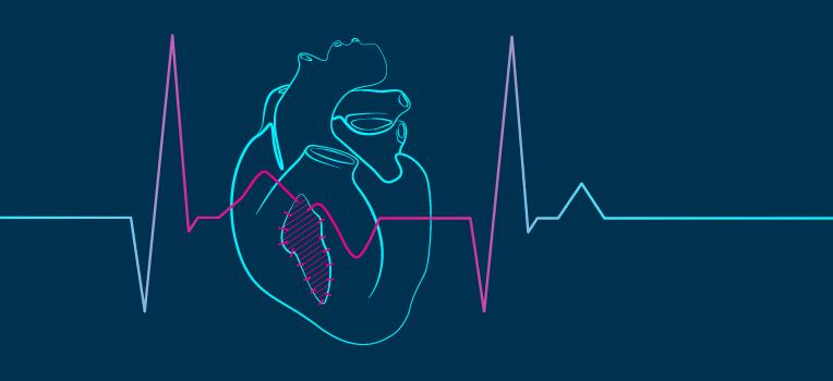 сердечные ткани