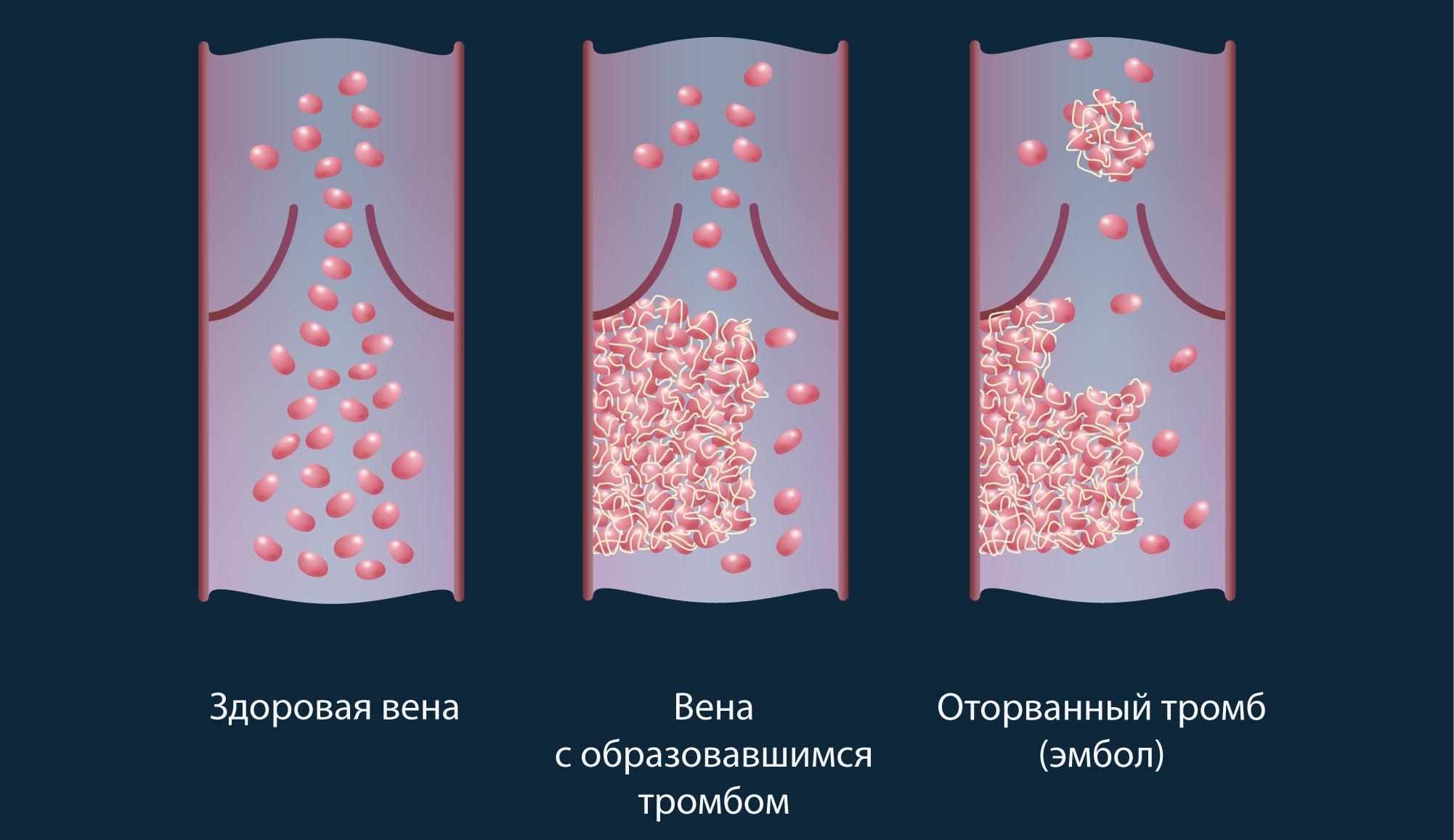 обнаружение тромбов